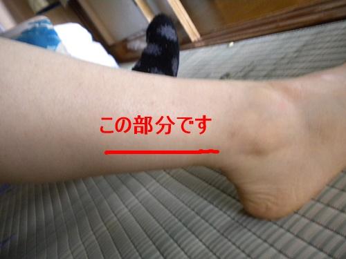 ツボ 坐骨 神経痛 マッサージ